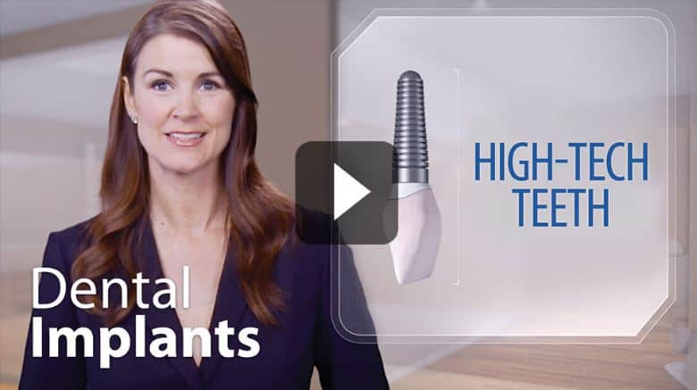 dental implants videos