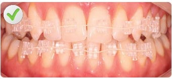 quick straight teeth clear fixed braces