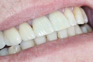 after bridge dental procedure willetton