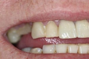 before bridge dental procedure willetton