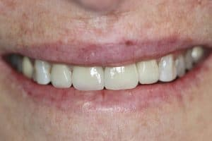 after dental implant at herald ave