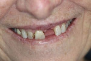 before dental implant at herald ave